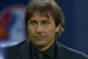Il goal italiano era talmente inaspettato che, in preda all'esultanza, Zaza ha colpito al volto Conte, facendolo sanguinare